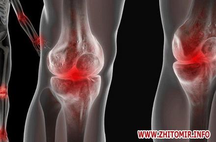 Комплексный сустав лечение бурсит плечевого сустава симптомы и лечение народными средствами
