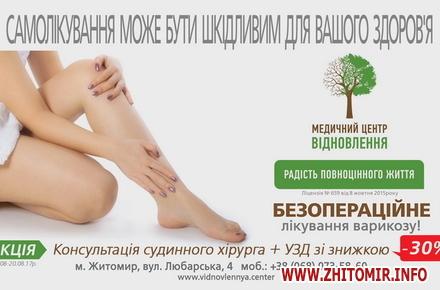 2017 08 01nogki hvori 3 w440 h290 - Чи можливо без операції позбутися неестетичних розширених вен на ногах людям з діагнозом варикозна хвороба