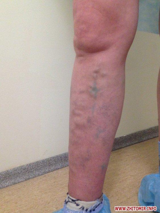 nogki hvori 2 - Чи можливо без операції позбутися неестетичних розширених вен на ногах людям з діагнозом варикозна хвороба