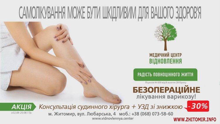 nogki hvori 3 - Чи можливо без операції позбутися неестетичних розширених вен на ногах людям з діагнозом варикозна хвороба