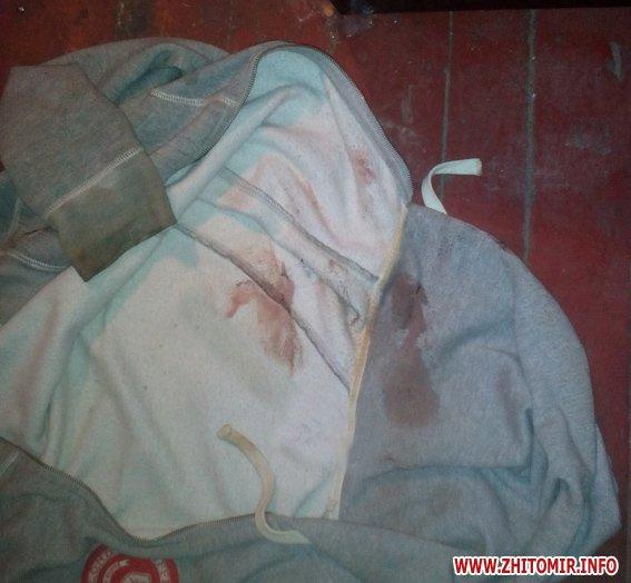 iiuyq 2 - Житель Бердичева забив до смерті старшу на 9 років співмешканку і викинув закривавлені речі у вікно