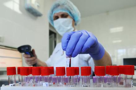 53cf463125640add91168ded85344d1c preview w440 h290 - Виконком затвердив тарифи: у житомирських лікарнях зробити ІФА-тест на коронавірус можна буде за 120 грн, а ПЛР – за 1330 грн