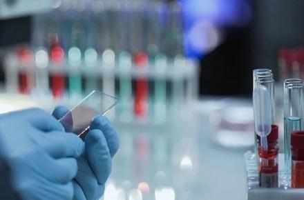8988cd4de7117f927c45a4df454b4689 preview w440 h290 - За добу коронавірус виявили у 12 жителів Житомирської області