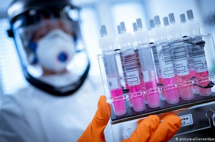 f2c94126a7573e8ddab18027b42e94a5 preview w440 h290 - За добу в області підтвердили 70 випадків коронавірусу, померла жителька Коростенського району