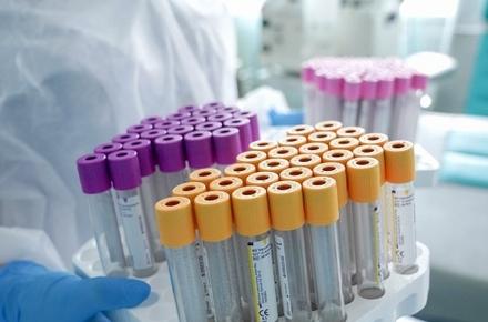 4925c0448dd57bc87085ad8773423d2a preview w440 h290 - За добу коронавірус виявили у 39 жителів Житомирської області