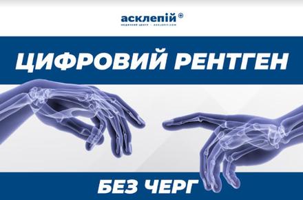 f4d6323ccb682b47787148020f833fa9 preview w440 h290 - Цифровий рентген в Медичному Центрi Асклепiй